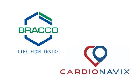 Bracco CardioNavix